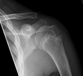 Proximal Humerus Fracture – Recovery